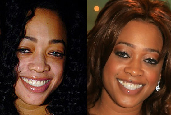 rapper Trina skin bleaching before and after