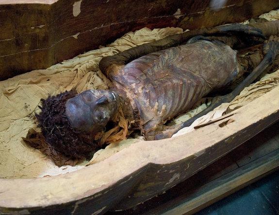 mummy-scan